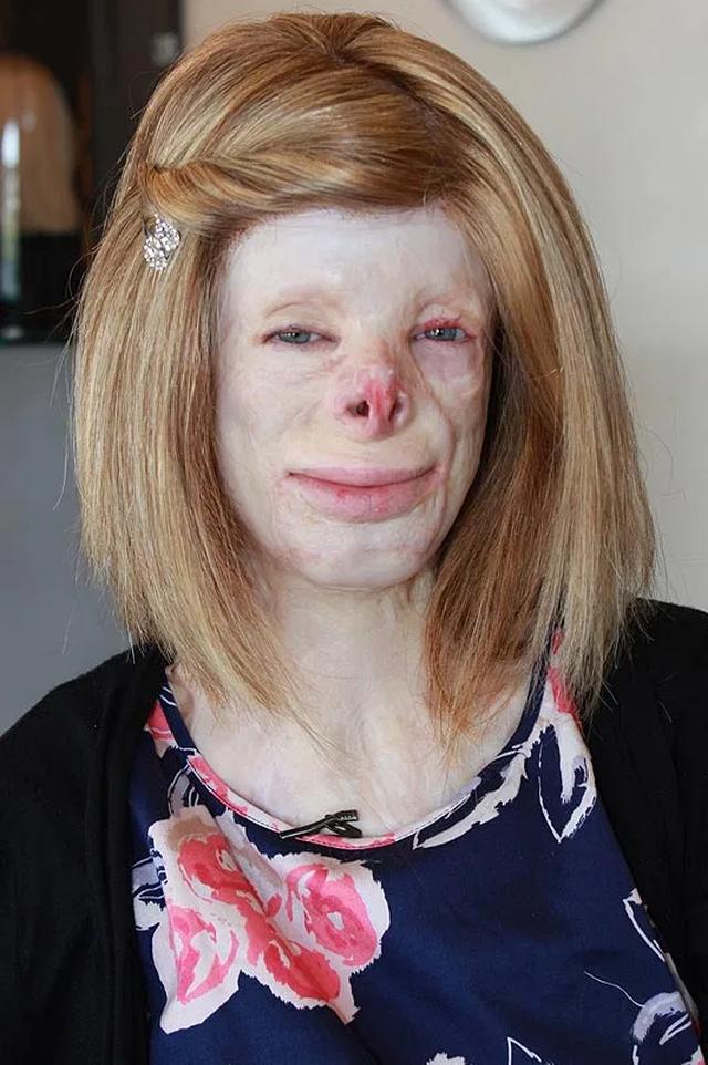 Hạnh phúc bất ngờ của cô gái từng bị bỏng đến biến dạng - 8