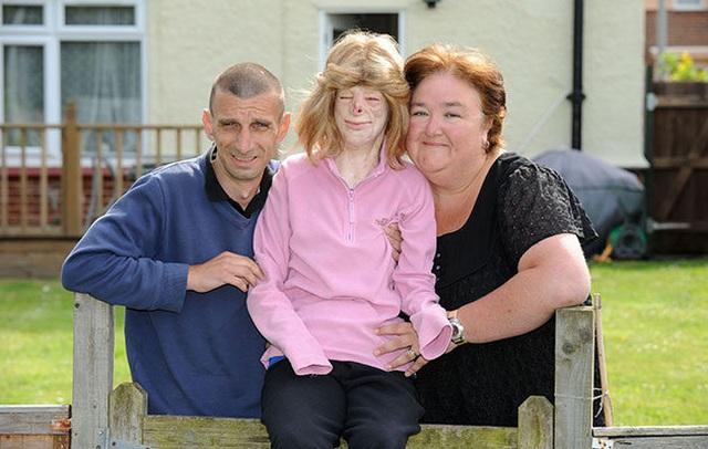 Hạnh phúc bất ngờ của cô gái từng bị bỏng đến biến dạng - 9