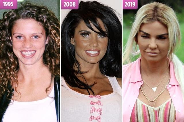 Người mẫu Katie Price thừa nhận 12 lần tu sửa vòng một - 7