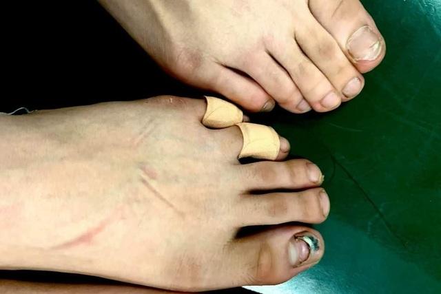 Đôi chân rướm máu và nước mắt gian khổ của học sinh trường Múa - 10