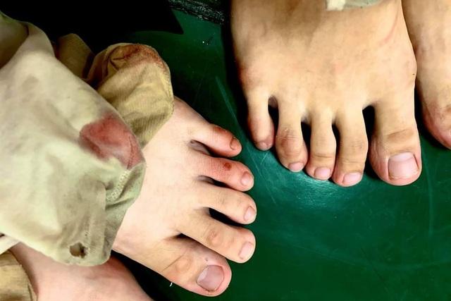 Đôi chân rướm máu và nước mắt gian khổ của học sinh trường Múa - 9