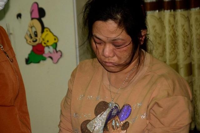 Hàng trăm kim tiêm dính máu trong nhà vợ chồng buôn bán chất trắng - 3
