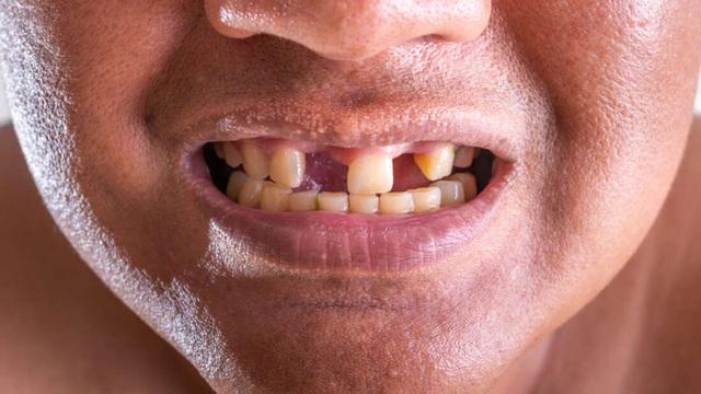Các nhà khoa học tìm ra cách có thể giúp con người mọc lại răng - 1