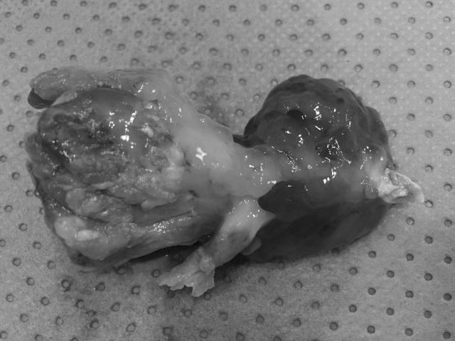 Sinh nhật suýt thành ngày giỗ vì u bạch tuộc trong tim