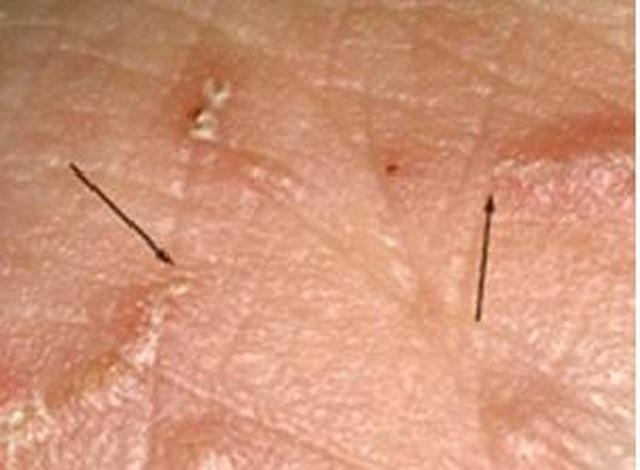Căn bệnh xuất hiện từ thời La Mã cổ đại đến nay vẫn ám ảnh loài người - 2
