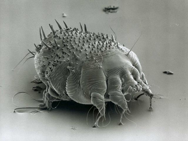 Căn bệnh xuất hiện từ thời La Mã cổ đại đến nay vẫn ám ảnh loài người - 1