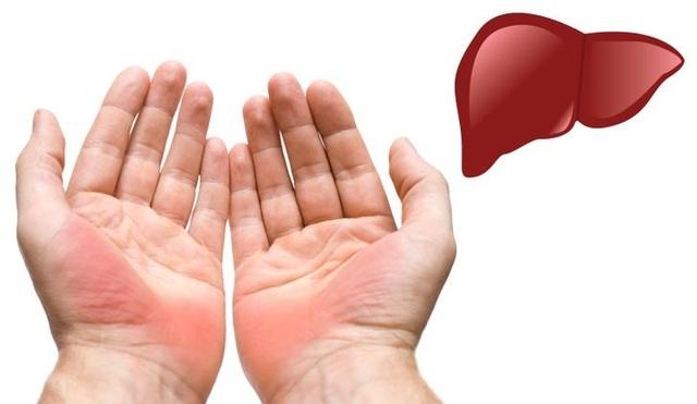 Thấy lòng bàn tay xuất hiện thứ này có thể gan đang mắc bệnh - 1