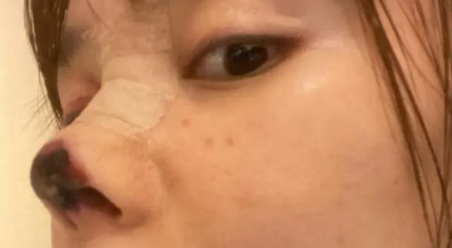 Người đẹp Trung Quốc mũi hoại tử đen sì sau phẫu thuật thẩm mỹ hỏng - 1