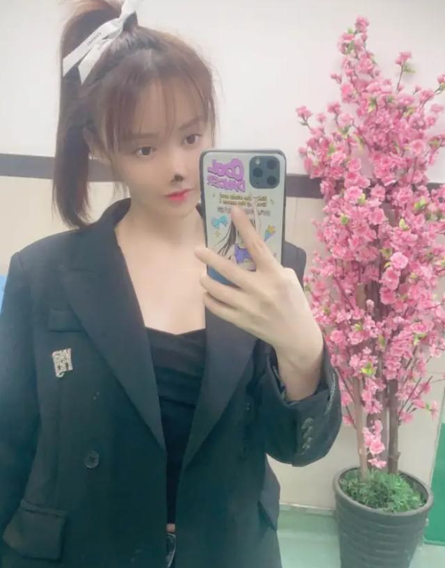 Người đẹp Trung Quốc mũi hoại tử đen sì sau phẫu thuật thẩm mỹ hỏng - 2