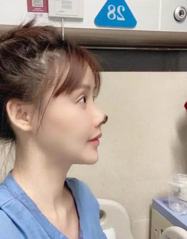 Người đẹp Trung Quốc mũi hoại tử đen sì sau phẫu thuật thẩm mỹ hỏng - 3