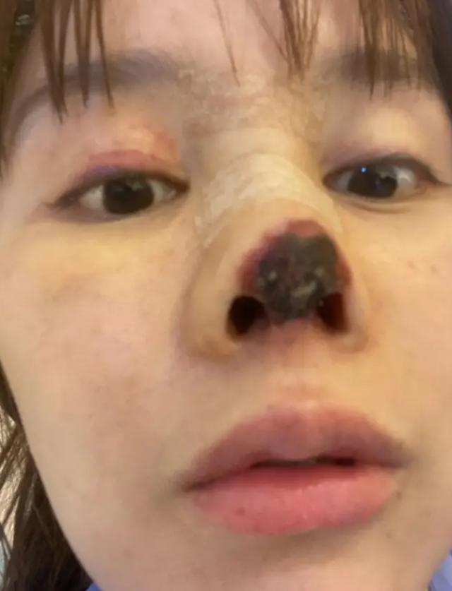 Người đẹp Trung Quốc mũi hoại tử đen sì sau phẫu thuật thẩm mỹ hỏng - 4