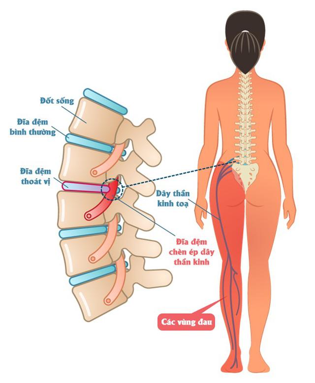 Phương pháp Chiropractic điều trị đau cơ xương khớp - 3
