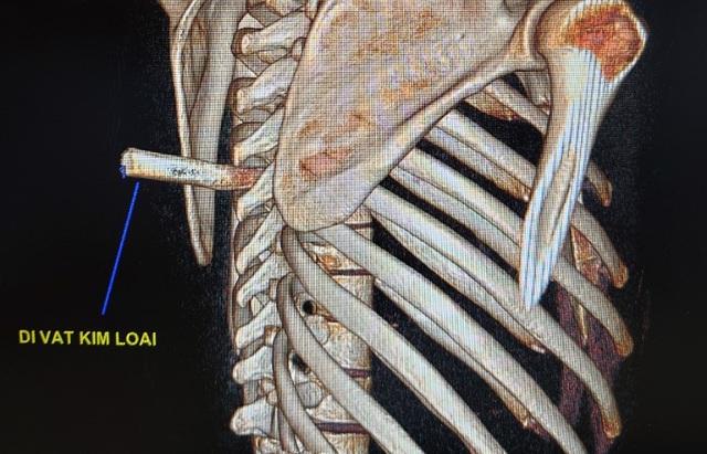 Nam thanh niên nhập viện với mũi dao đâm thẳng vào sống lưng - 1
