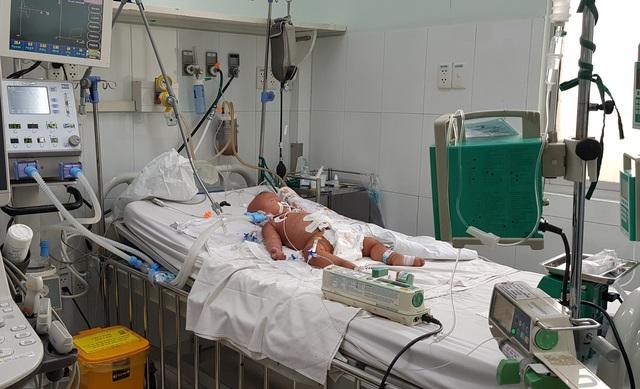 Vết muỗi chích khiến bé 9 tháng tuổi sốc nặng, nguy kịch - 1