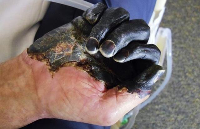 Cái chết đen: Dịch bệnh từng quét sạch một nửa dân số châu Âu - 3
