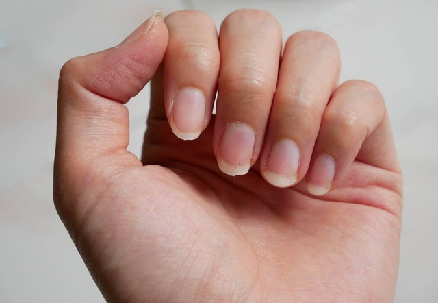 Đặc điểm bàn tay của người có một lá gan khỏe - 1
