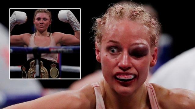 Kinh hãi gương mặt sưng húp của nữ võ sĩ sau trận đấu tàn khốc - 3
