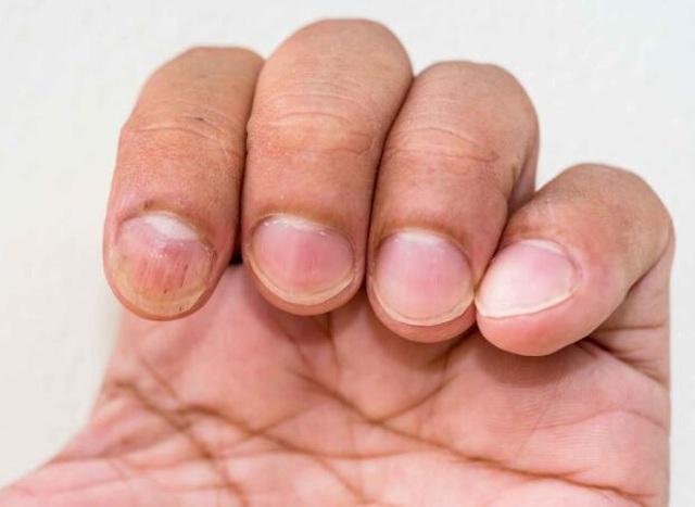 Khi lá gan bị xơ hóa sẽ xuất hiện những thay đổi này trên cơ thể - 2