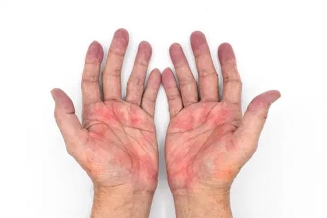 Dấu hiệu trên bàn tay cảnh báo bệnh gan - 1