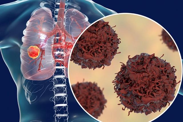 39 tuổi có nốt ở phổi có phải ung thư không? - 1