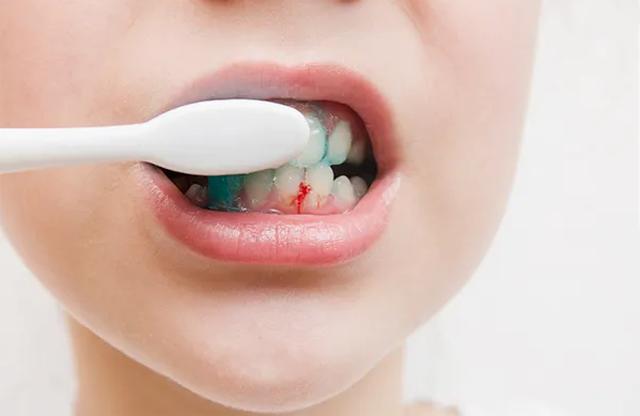 Nhìn vào miệng để bắt bệnh lá gan - 2