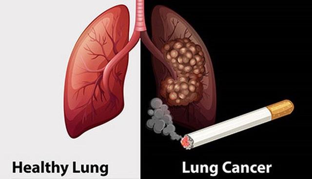 SOS: Thêm 26.000 người Việt mắc ung thư phổi năm 2020, 90% đều hút thuốc lá - 1