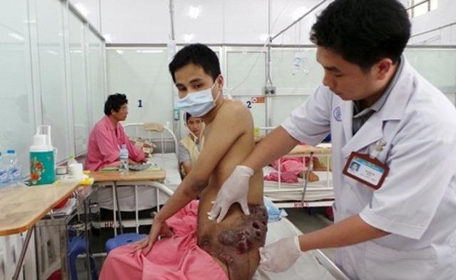 Một bệnh nhân được Bảo hiểm y tế chi trả 38,3 tỷ đồng - 1
