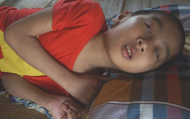 Xót xa hoàn cảnh cậu bé mắc căn bệnh hiếm gặp trên thế giới - 3