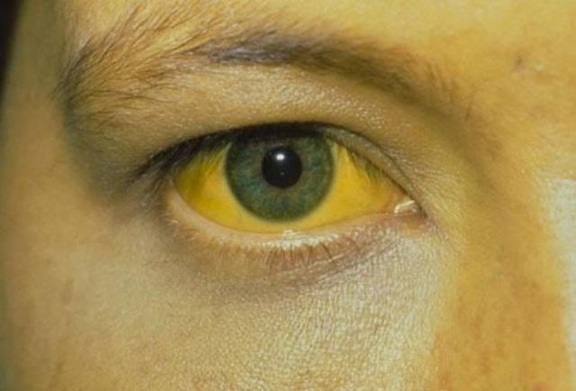 Mệt mỏi, da mẩn đỏ: Có thể virus đang tàn phá lá gan - 4