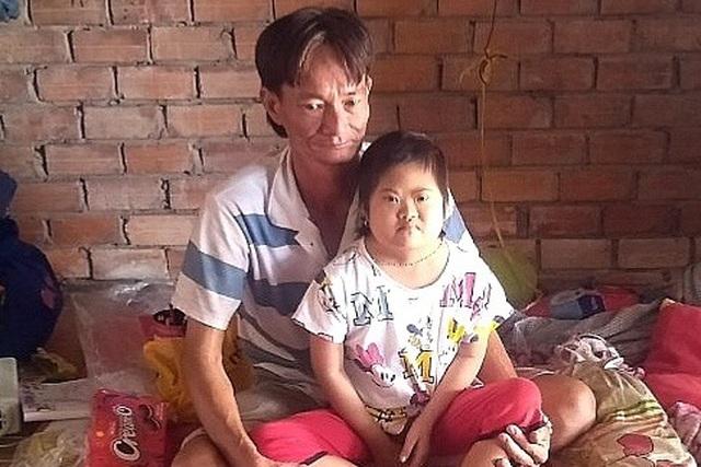 Người cha khắc khổ xin quỳ lạy để cứu con gái chịu thiệt thòi từ nhỏ - 2