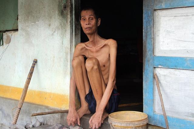 Thương người đàn ông gầy nhất vùng trong ngôi nhà 4 mảnh đời nghèo bền vững - 2