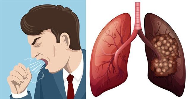 5 dấu hiệu sớm của ung thư phổi - 1