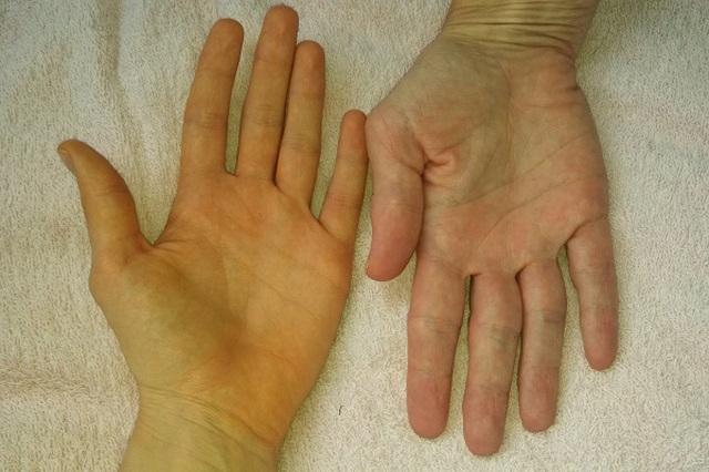 2 đau - 1 vàng cảnh báo ung thư gan đang âm thầm phát triển - 3