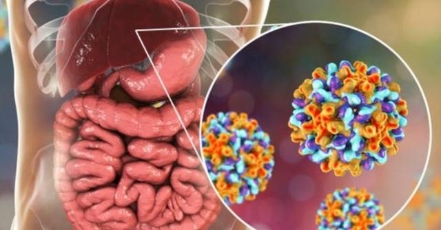 Xét nghiệm thấy men gan cao: Bệnh lý nào đang ẩn trong cơ thể? - 2