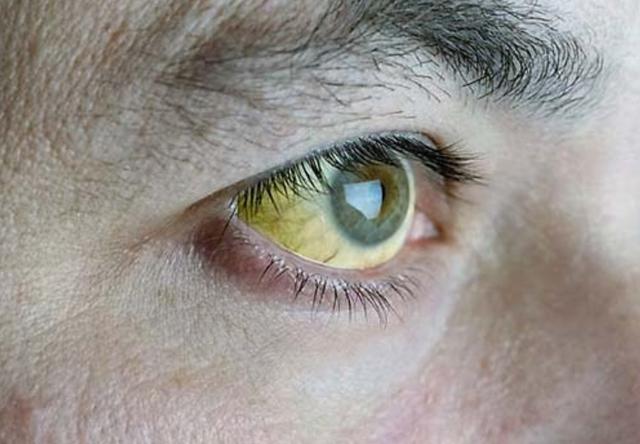 Dấu hiệu đỏ - vàng - đen cảnh báo gan bị hư hại không thể phục hồi - 2