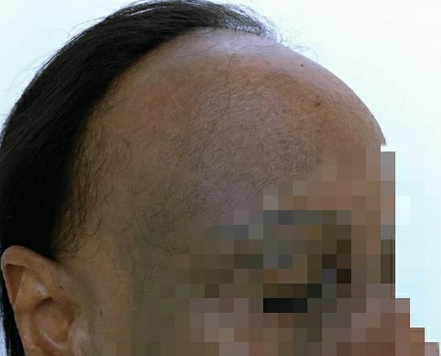 Nữ bệnh nhân bỗng nhiên đen sạm da, nửa đầu rụng hết tóc - 2