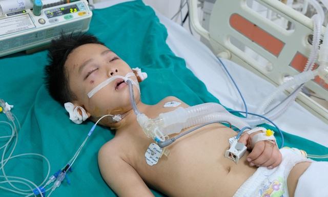 Tai nạn dồn dập, người mẹ trẻ ngã khụyu cầu xin sự sống cho chồng, con - 1