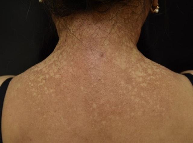 Nữ bệnh nhân bỗng nhiên đen sạm da, nửa đầu rụng hết tóc - 3