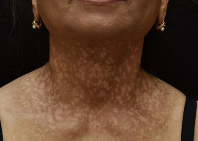 Nữ bệnh nhân bỗng nhiên đen sạm da, nửa đầu rụng hết tóc - 1