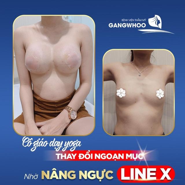 Cùng bác sĩ tìm hiểu 2 phương pháp nâng ngực hot hiện nay - 5