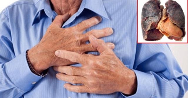 7 triệu chứng cảnh báo ung thư phổi - 1