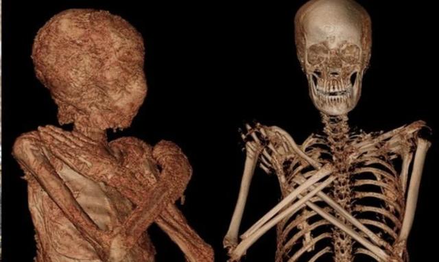 Lần đầu tiên phát hiện xác ướp Ai Cập cổ đại vẫn đang… mang thai - 1