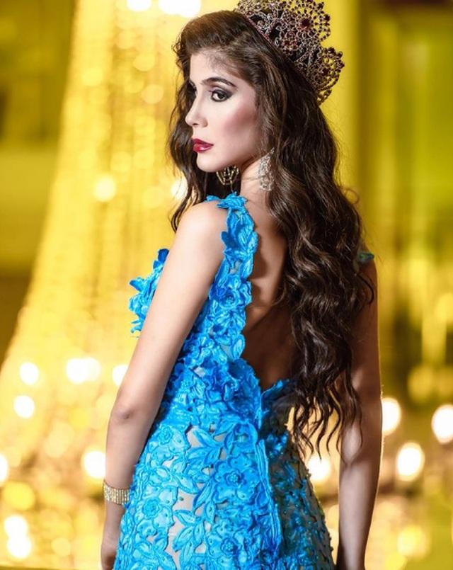 Nhan sắc gây tranh cãi của Hoa hậu vừa mắc Covid-19 - 4