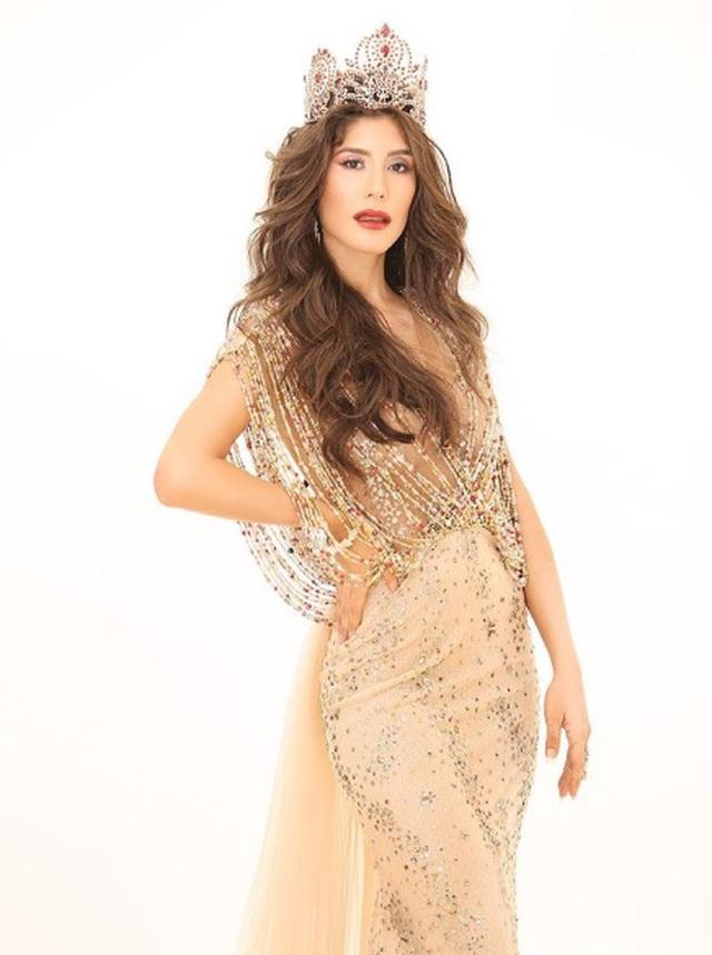Nhan sắc gây tranh cãi của Hoa hậu vừa mắc Covid-19 - 8