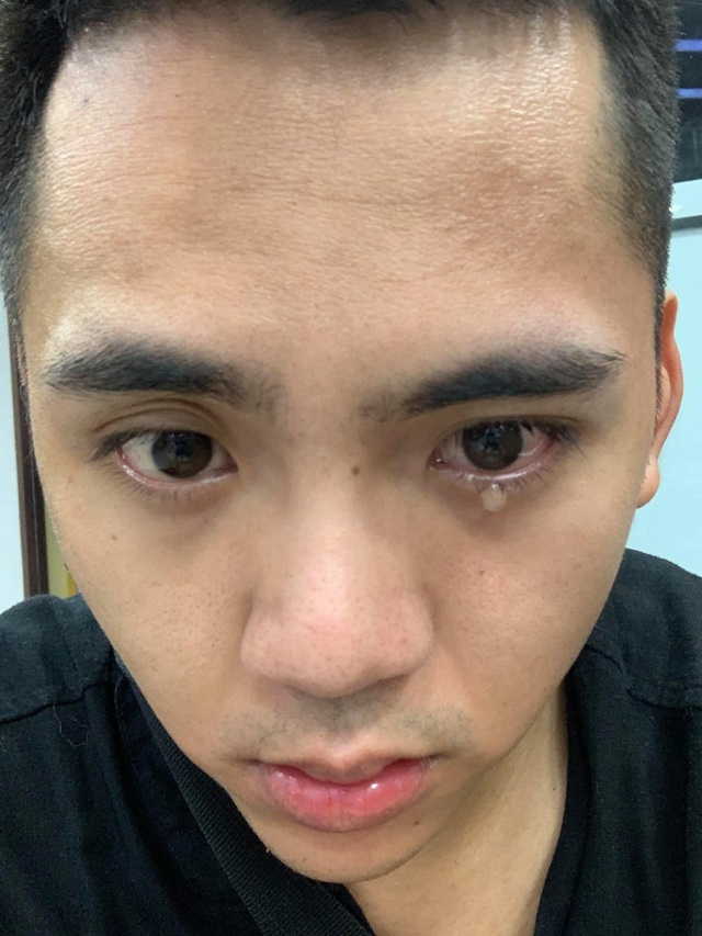Lời cảnh tỉnh của chàng Youtuber sau hành trình chữa trúng gió méo miệng - 1