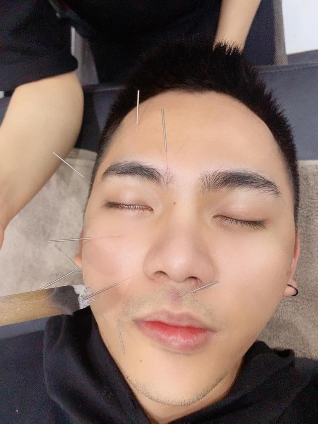 Lời cảnh tỉnh của chàng Youtuber sau hành trình chữa trúng gió méo miệng - 6