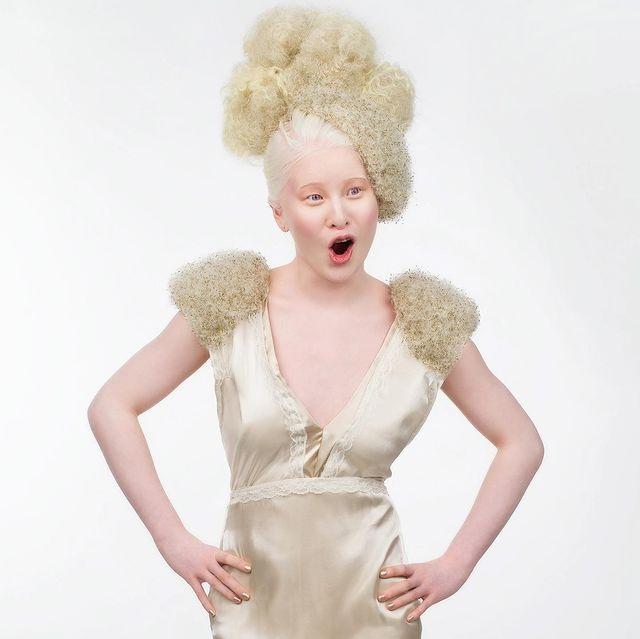 Cô bé bạch tạng bị cha mẹ bỏ rơi thành người mẫu nổi tiếng - 3
