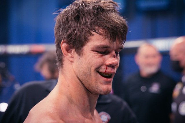 Kinh hoàng võ sĩ bị biến dạng mũi sau khi nhận cú đá thần sầu - 4