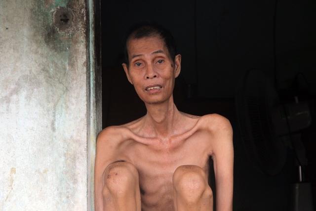 Thương người đàn ông gầy nhất vùng trong ngôi nhà 4 mảnh đời nghèo bền vững - 3