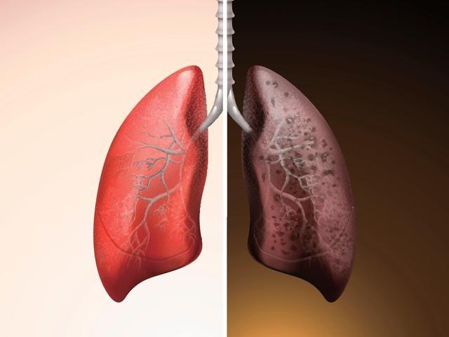 Có những dấu hiệu này khi ho, coi chừng ung thư phổi đang âm thầm - 2